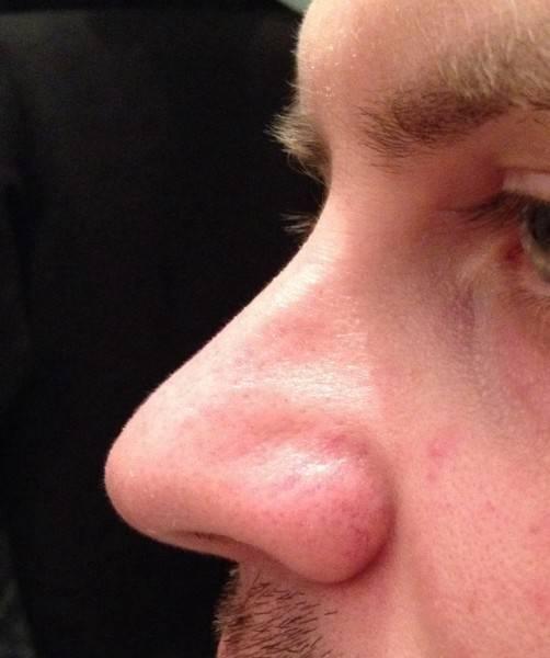 Что форма носа расскажет о вашем характере и личной жизни :: инфониак