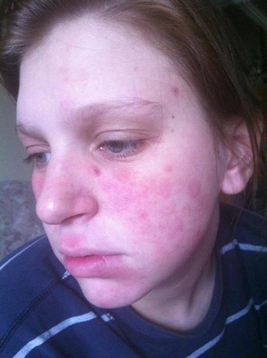 Дерматит у детей — основные причины, симптомы, диагностика и варианты лечения. видео + 120 фото проявлений детского дерматита
