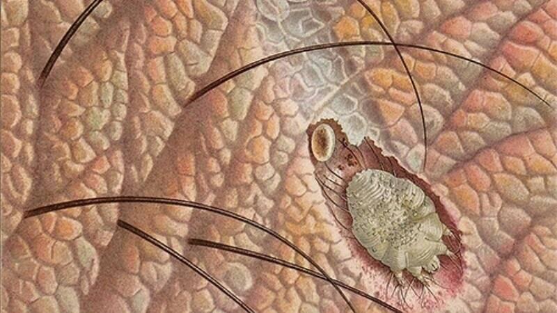 чесоточный клещ у человека лечение