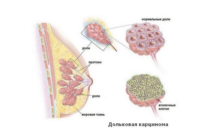 Инвазивный неспецифический рак молочной железы g2 — ooncologiya
