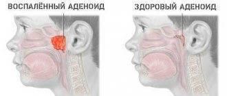 О чем сигнализирует сухость в горле?