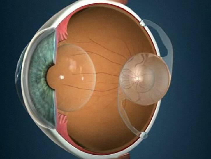 Дислокация искусственного хрусталика глаза (иол)