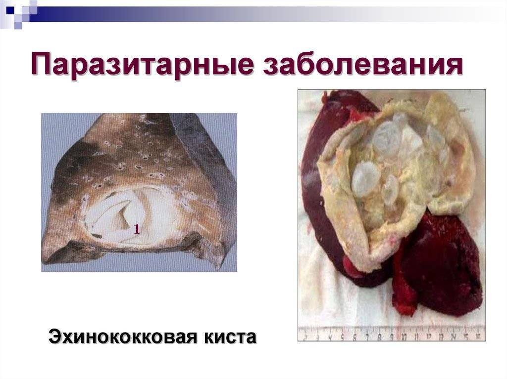 паразитарные болезни человека