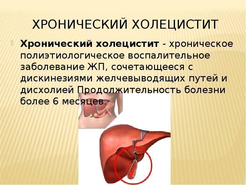 как вылечить хронический холецистит