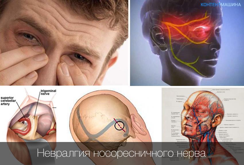 невралгия малоберцового нерва