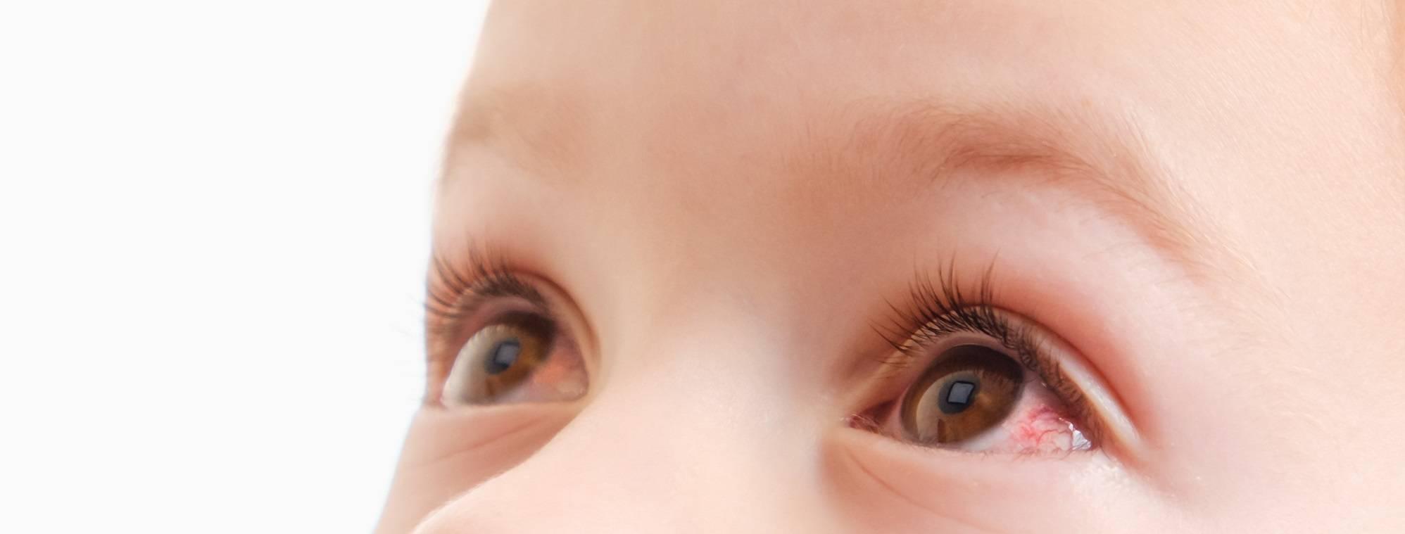 почему лопаются сосуды в глазах у ребенка