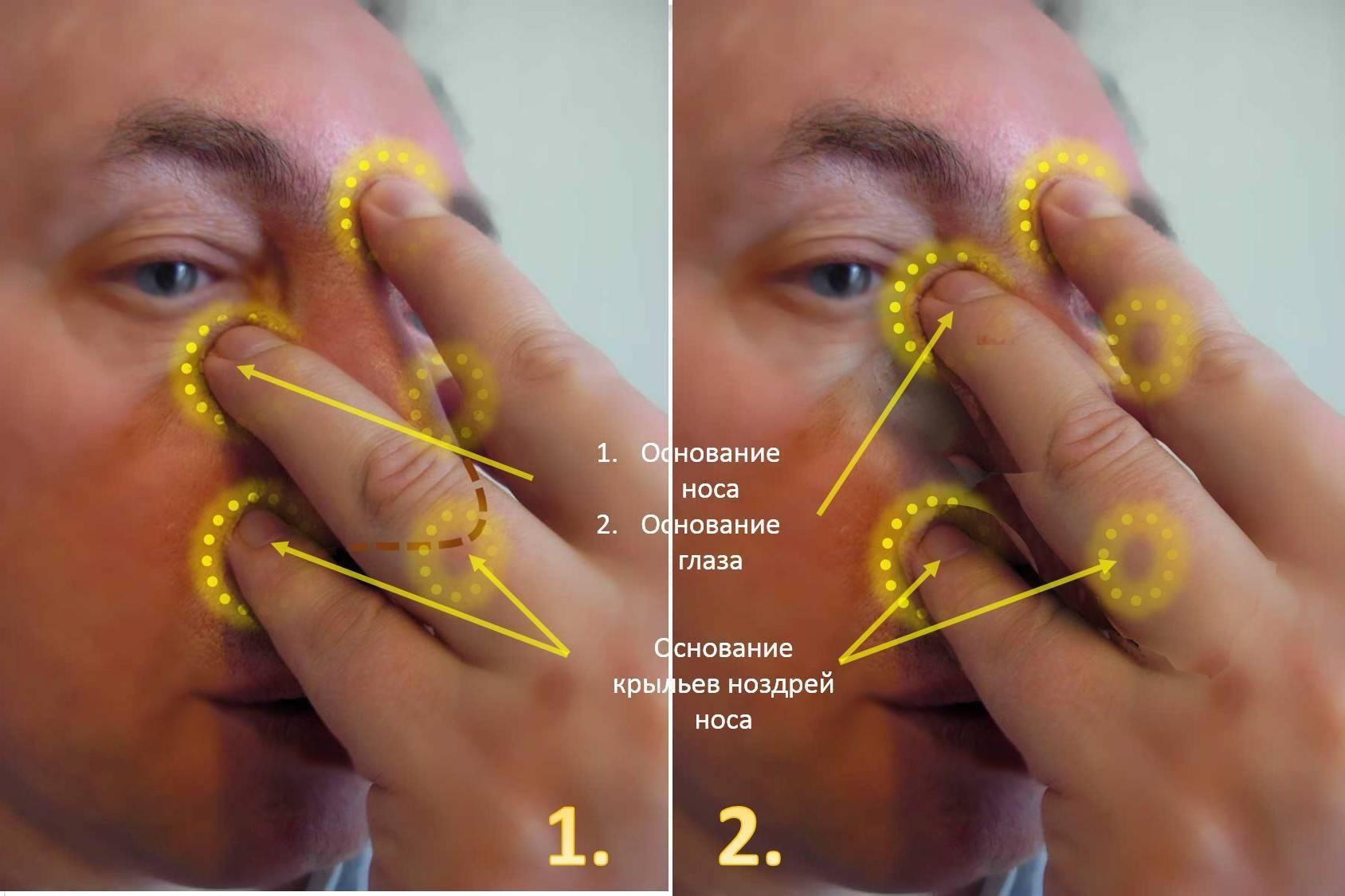 Можно ли греть нос при насморке