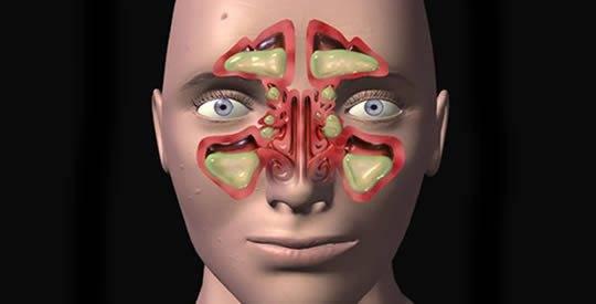 Этмоидальный синусит (этмоидит) - описание болезни
