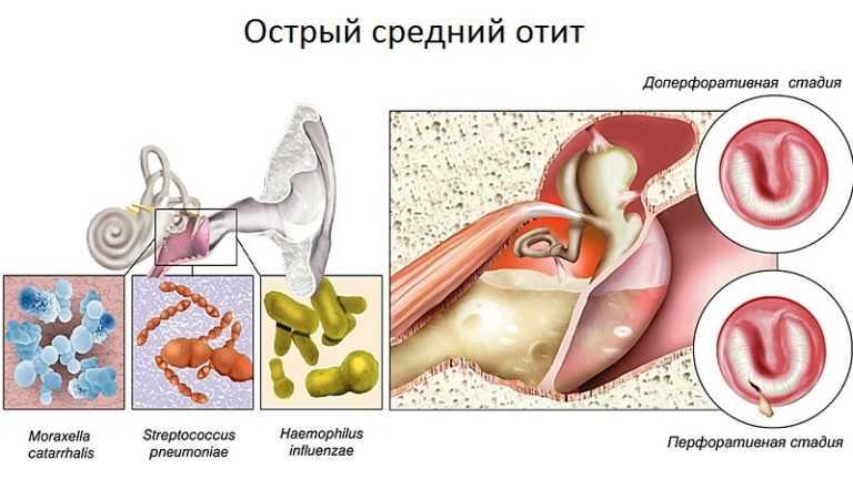 Вирусный отит у детей симптомы и лечение
