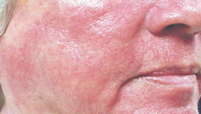 Мазь от солнечного дерматита у взрослых