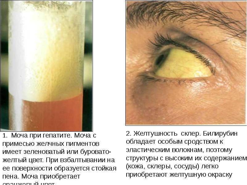 Желтуха: симптомы у взрослых, как передается, особенности лечения