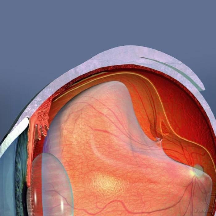 симптомы разрыва сетчатки глаза