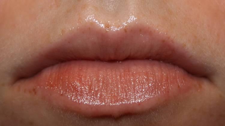 Лечение дерматита на лице и губах