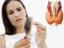 При заболевании щитовидной железы выпадают волосы. щитовидка и волосы. диагностика и лечение