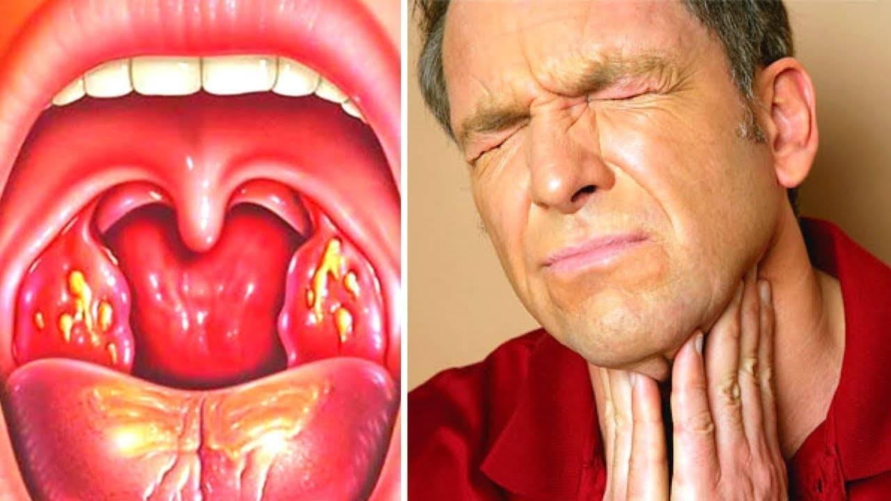 Гнойная ангина – фото, лечение в домашних условиях быстро, таблетки от ангины