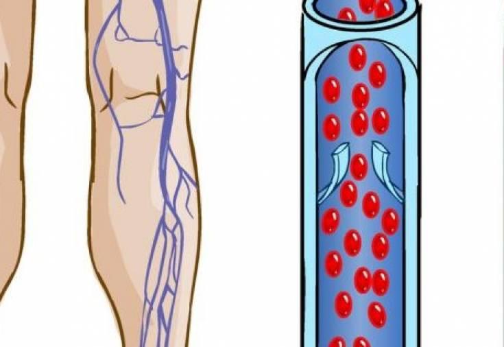 Облитерирующий атеросклероз нижних конечностей медикаментозное лечение