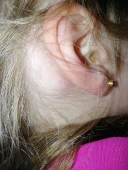 воспаление лимфоузлов за ухом у ребенка