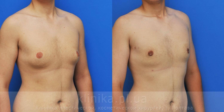 Гинекомастия у мужчин: операция, когда необходимо оперировать