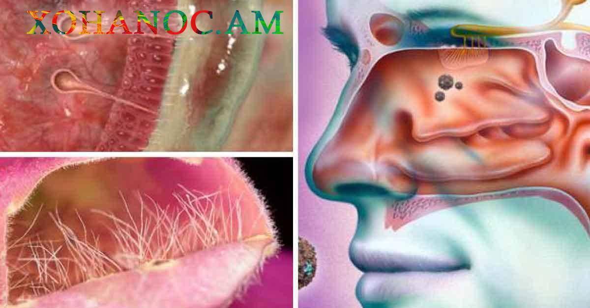 Бактериальный насморк: проявление и лечение заболевания
