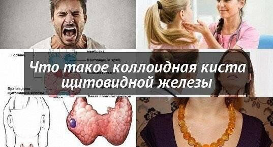 Коллоидные кисты в щитовидке