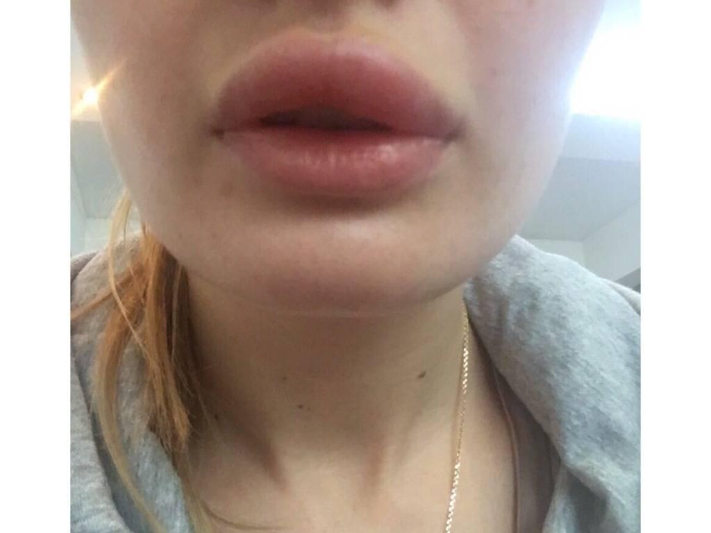 Опухла губа от герпеса что делать