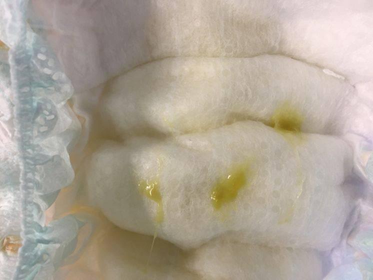 Желтые сопли: врач-бактериолог о причинах и принципах лечения