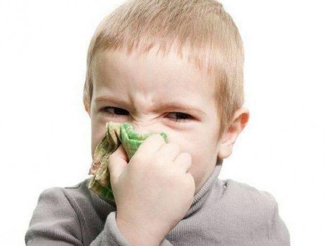 Гайморит у ребенка. причины, симптомы, лечение и профилактика гайморита