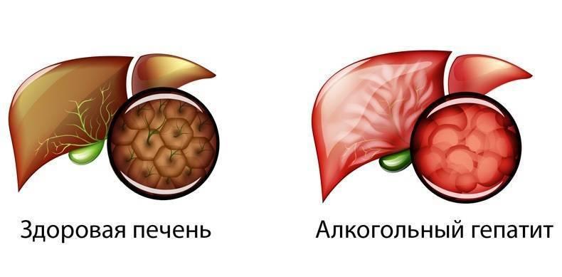 Токсический алкогольный гепатит | стоп алкоголизм