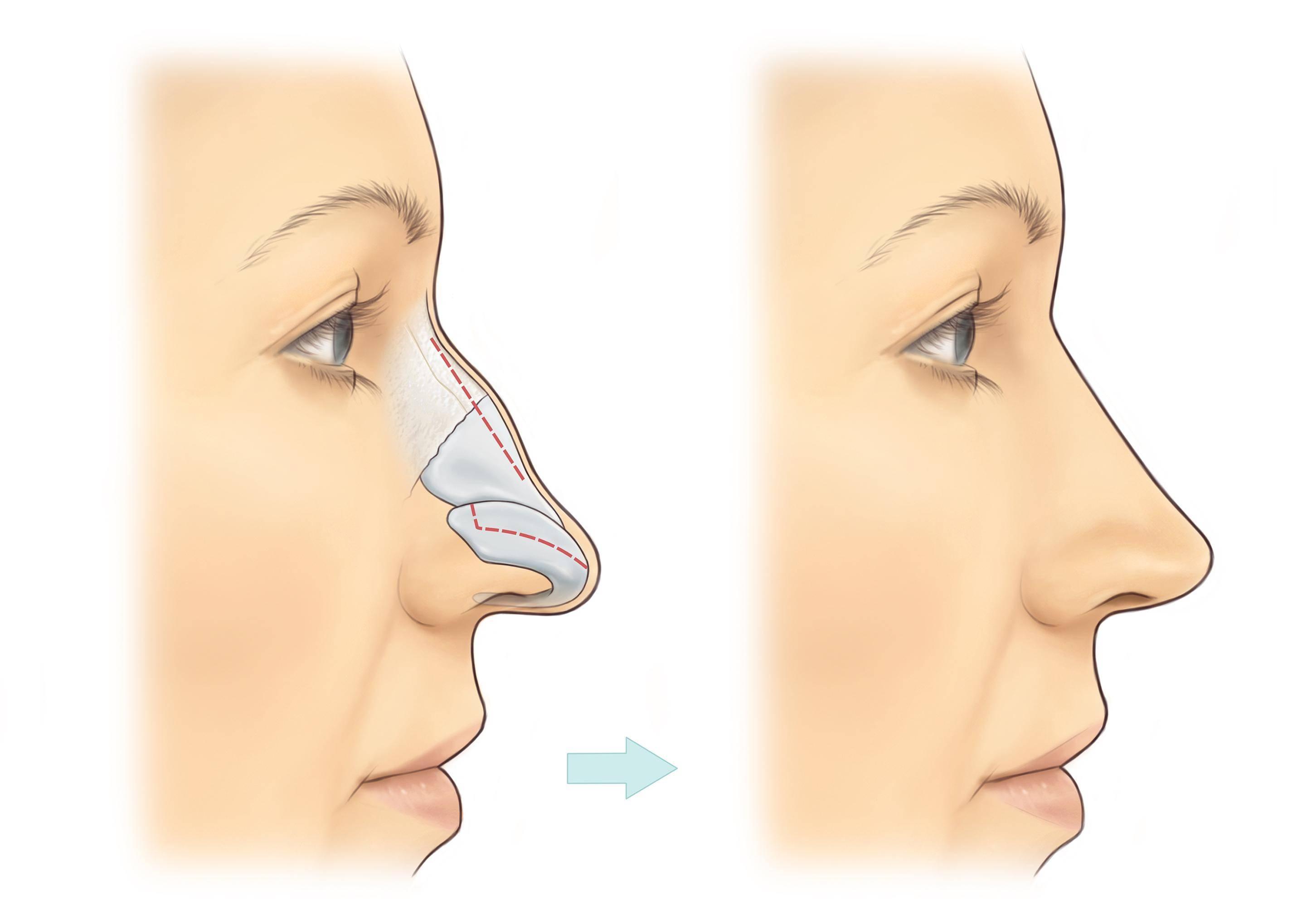 болит кончик носа при нажатии