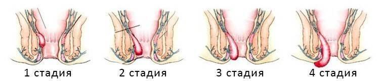Геморрой при беременности и после родов. как лечить геморрой? симптомы и лечение геморроя у беременных
