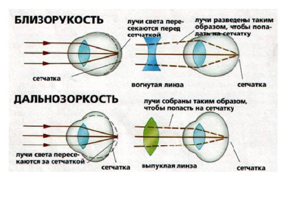 линзы для близорукости