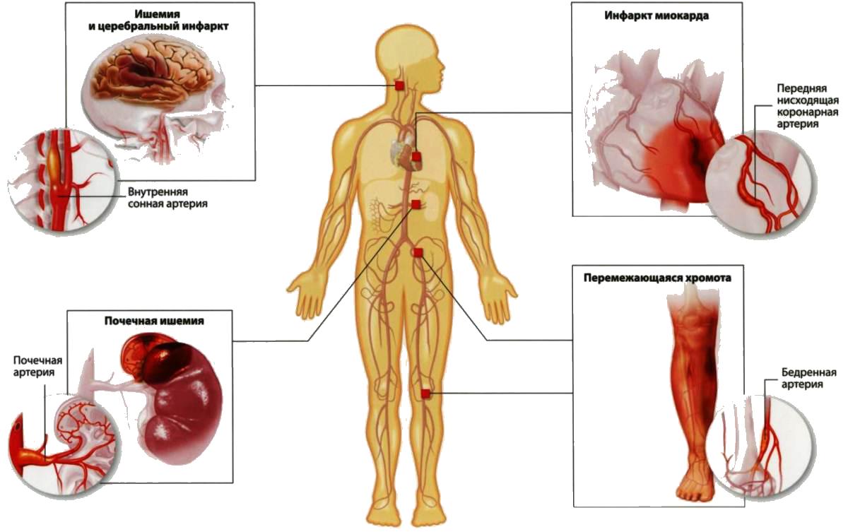 Симптомы атеросклероза сосудов