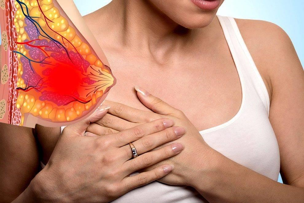 Масталгия (мастодиния)- симптомы, диагностика и лечение