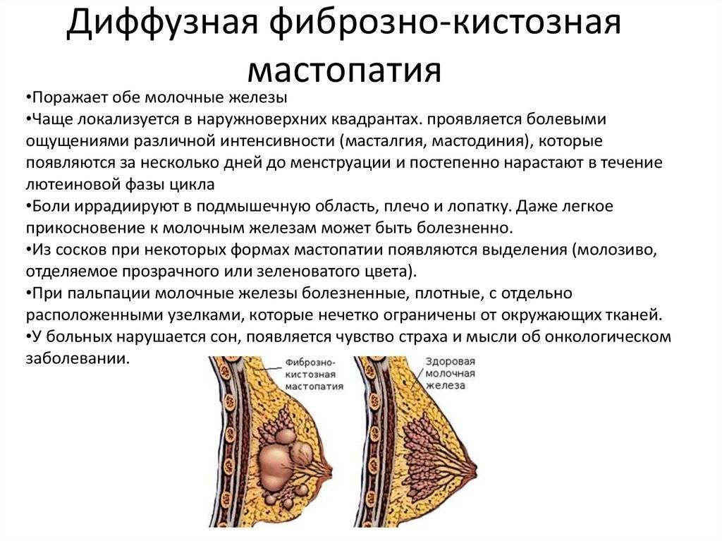 диффузно кистозная мастопатия