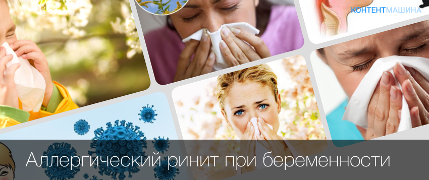 Аллергический ринит у беременных -чем лечить насморк при беременности
