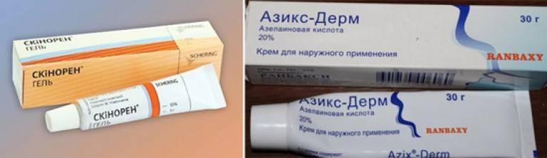 Чем лечить демодекоз?