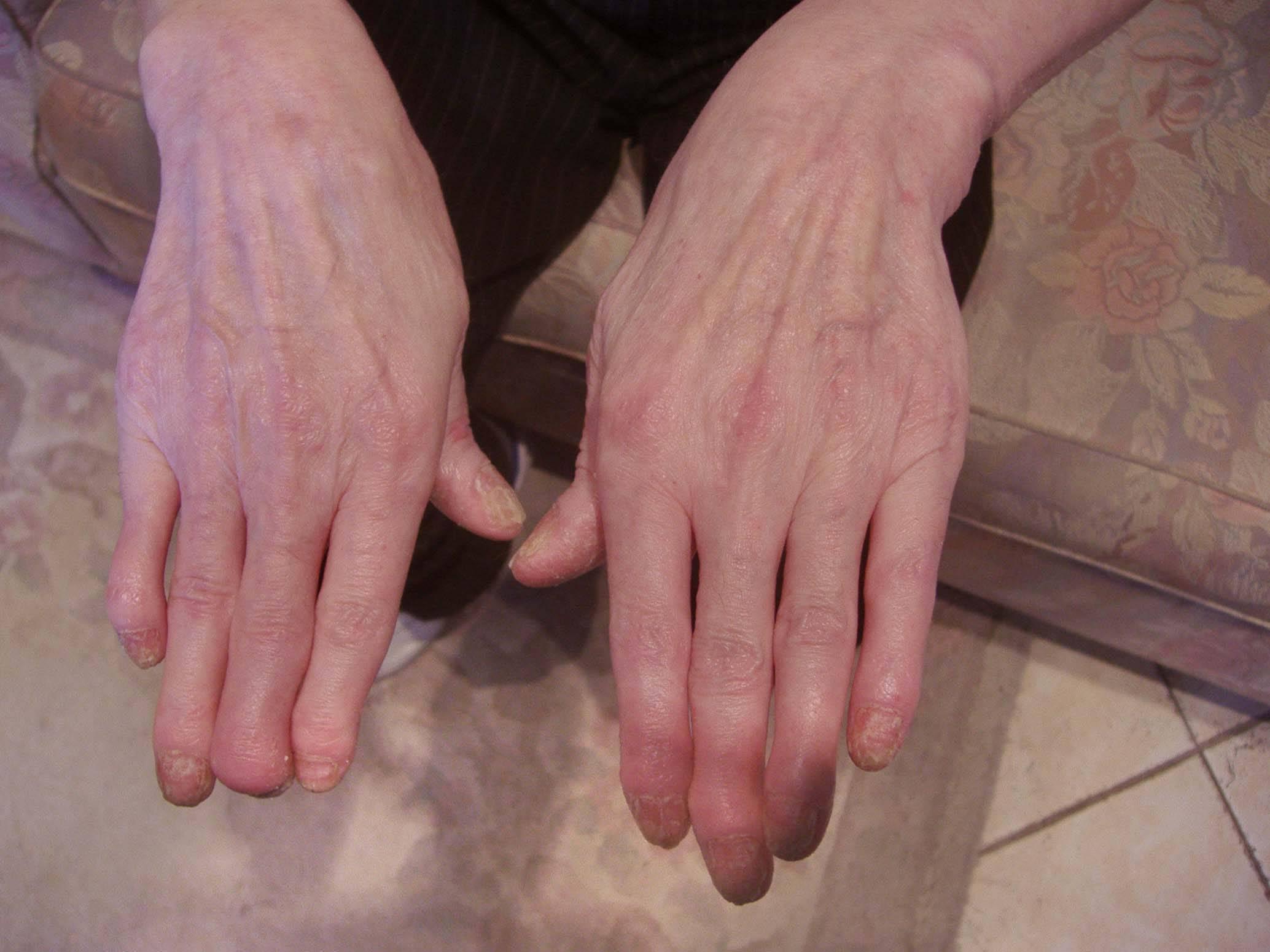 Псориаз: симптомы (фото), причины и лечение