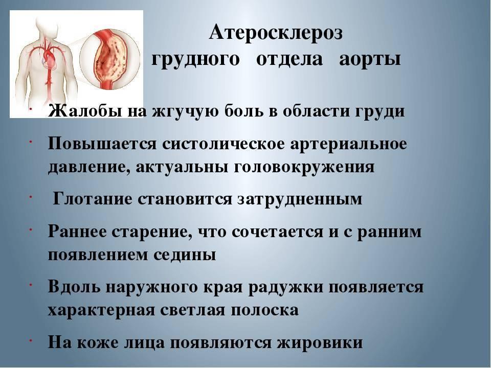 Атеросклероз аорты: симптомы и лечение