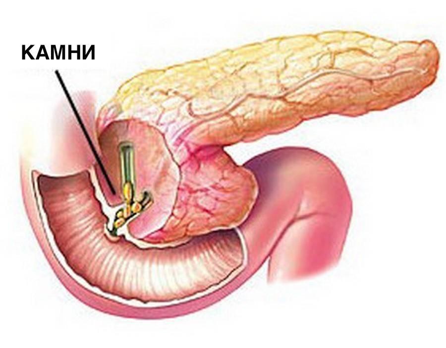 Панкреатит при холецестите – симптомы и лечение