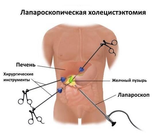 Зарядка после лапароскопии маточных труб: какую гимнастику надо делать