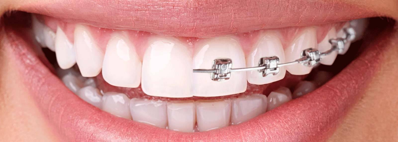 Ортодонт – что это за врач и что он лечит?