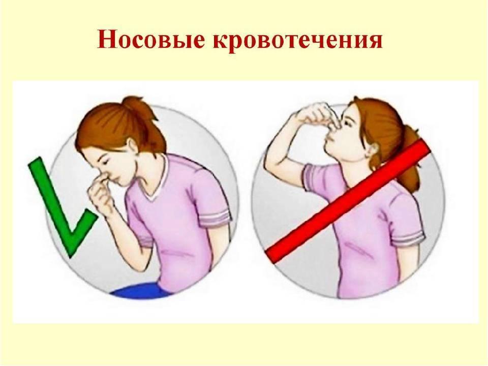как вызвать носовое кровотечение