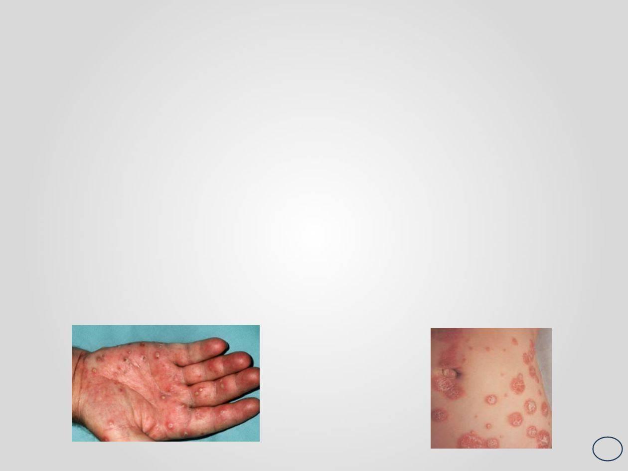 лечение пустулезного псориаза
