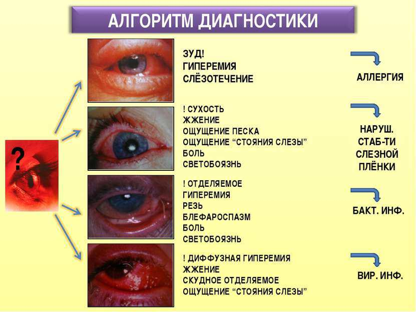 Глаза болят и слезятся: причины этого симптома. если глаз слезиться и болит: что делать, как снять страдания