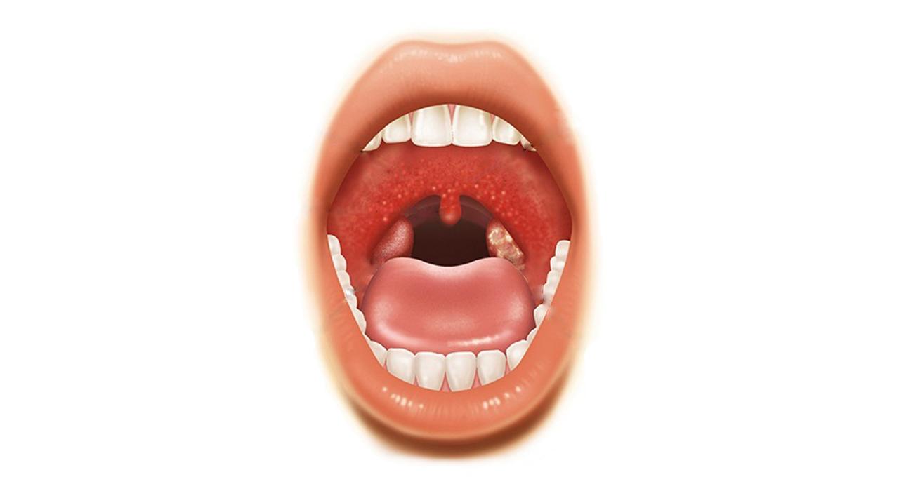 Герпесная ангина – причины, симптомы, лечение и профилактика