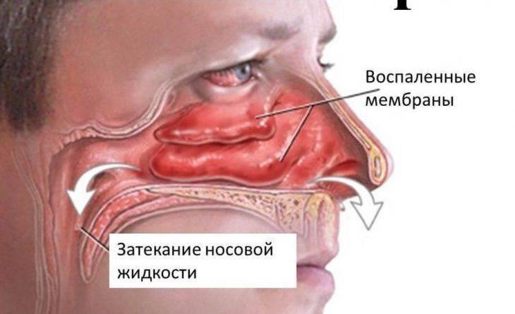 постоянная заложенность носа без насморка лечение