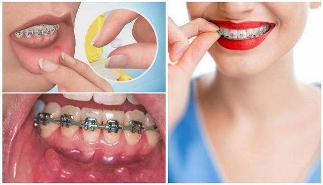 Брекеты натирают щеки: что делать, если мешают, царапают губы, силикон для накладок от натирания