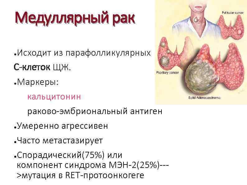 Медуллярный рак щитовидной железы симптомы