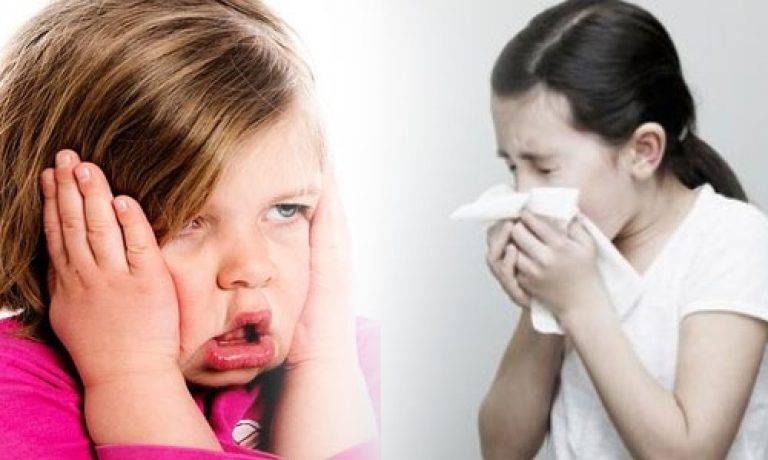 гайморит заразен для ребенка