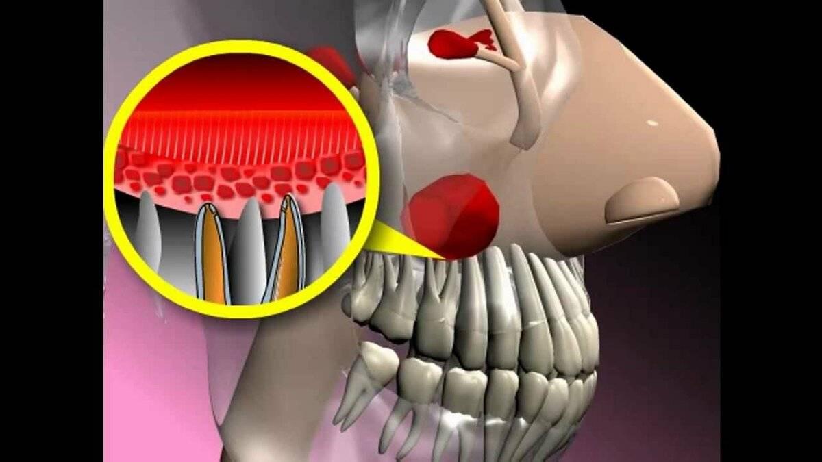 могут ли болеть зубы при гайморите